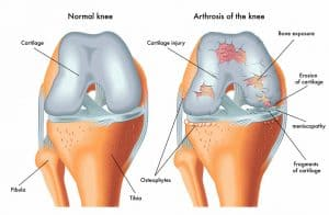 arthrose genoux explications traitement